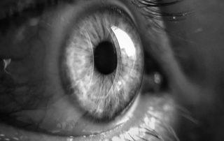 Ceratocone e Exercícios Visuais: 4 Dúvidas Frequentes Sobre o Tema